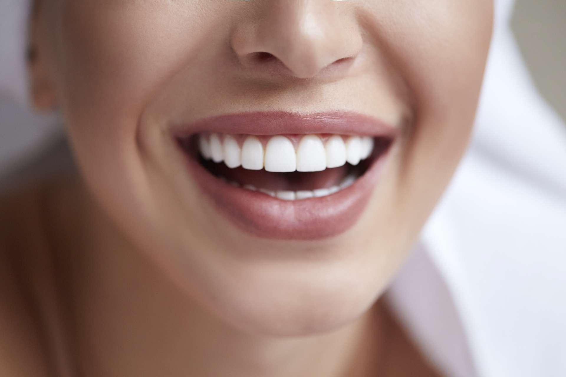 Close-up woman's smiling mouth - Teeth Whitening New York, Teeth Whitening Manhattan